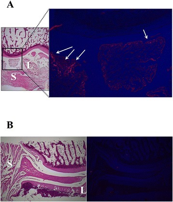 DiI labeling at 8 weeks (a) and 12 weeks (b) after ACLT; After intra-articular injection of ADSCs labeled with DiI dye, frozen sections were prepared and then stained with hematoxylin and eosin. DiI positive cells survived and homed to the subintimal layers of the synovium (S) and ligament (L), not in the cartilage at 8 weeks after ACLT
