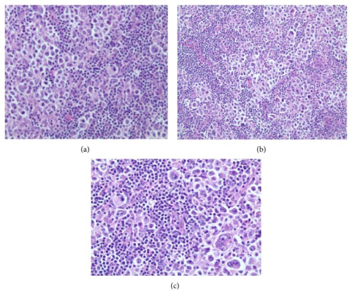 (a, b, c) Hematoxylin & Eosin stain slides showing tumor characteristic.