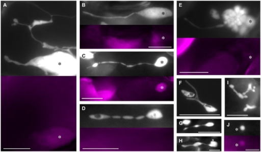 Plastid morphology in leaf epidermis of atminE1. (A–J) Images of CFP-labeled plastids in leaf petiole epidermis of 2- or 3-week-old atminE1 seedlings. Fluorescence images of chlorophyll (colored in magenta) are also shown. Asterisks indicate plastid bodies with positive chlorophyll signals. Plastids in (D,F–I) lack signals. Bars = 10 μm (A–I) and 5 μm (J).