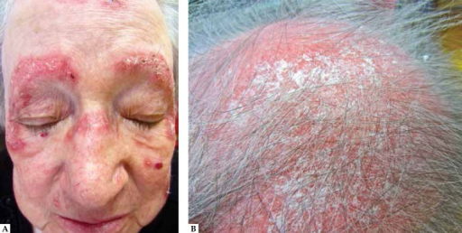 A: Multiple well-defined erythematous plaques distributed over convex areas of theface; B: Marked inflammatory infiltration of the scalp with follicular plugging,adherent scale and alopecia