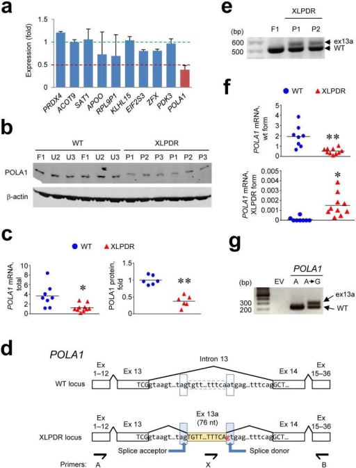 XLPDR is due to an intronic mutation that disrupts POLA1 expression(a) RNA-seq quantification of gene expression across the XLPDR linkage interval in XLPDR-derived dermal fibroblasts (P1, P2, P3) was normalized against four normal fibroblast cell lines (F1, and three lines from unrelated males, U1, U2, U3). Only genes with detectable expression are displayed. (b) Immunoblotting determination of POLA1 protein expression in dermal fibroblasts from unaffected control lines and XLPDR-derived cells. (c) Quantitative RT-PCR (qRT-PCR) for POLA1 mRNA (left panel) in multiple independent samples from dermal fibroblasts from unaffected individuals (8 samples, 4 cell lines) and XLPDR patients (10 samples, 2 cell lines). POLA1 mRNA level is normalized to ACTB (×10−3). In addition, quantification of POLA1 protein levels shown in (b) are similarly presented (right panel). (d) Schematic representation of the mutation in intron 13 of the POLA1 gene. The location of primers used for RT-PCR are noted. Ex – exon. (e) RT-PCR using primers A and B (see d) and RNA from XLPDR-derived fibroblasts and a control line. The amplified products were separated by agarose gel electrophoresis and visualized with ethidium bromide. (f) qRT-PCR using transcript-specific primers for wild-type and misspliced forms of POLA1 mRNA from dermal fibroblasts from unaffected individuals (8 samples, 4 cell lines) and XLPDR patients (10 samples, 2 cell lines) was performed. (g) Exon trapping analysis in cells transfected with pSpliceExpress plasmids containing empty vector (EV), the wild type POLA1 intron 13 (A), or the intron bearing the XLPDR mutation (A→G). RT-PCR amplified products were analyzed by agarose gel electrophoresis and visualized with ethidium bromide staining. *p<0.005, **p<0.001 (unpaired Student's t-test). Data are pooled from 3 independent experiments (a), or representative from 2 (e,f,g) or 4 (b,e) independent experiments (mean and s.e.m.(a) or mean and individual sample values (c,f)).