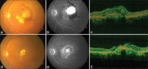 A Fundus Image Shows Large Subfoveal Choroidal Neovascularization With Fresh Subretinal Hemorrhage And Exudates