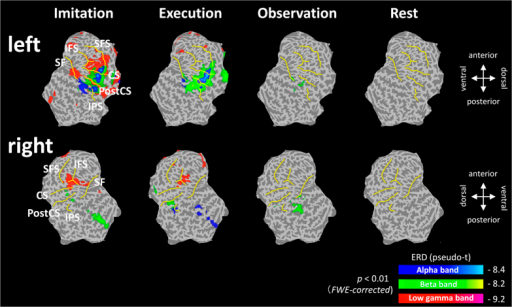 Superimposed results of group statistical maps onto a flattened cortical surface at 300–500 ms after the presentation of Cue 2, during each condition.Significant ERDs were mapped to the flattened surface in the order of blue (alpha band), green (beta band), and red (low-gamma band) (p < 0.01, FWER-corrected). Prominent ERDs in the low-gamma band at the sensorimotor and frontal areas were observed only during the imitation condition. SFS, superior frontal sulcus; IFS, inferior frontal sulcus; SF, sylvian fissure; CS, central sulcus; Post CS, postcentral sulcus; IPS, intraparietal sulcus.