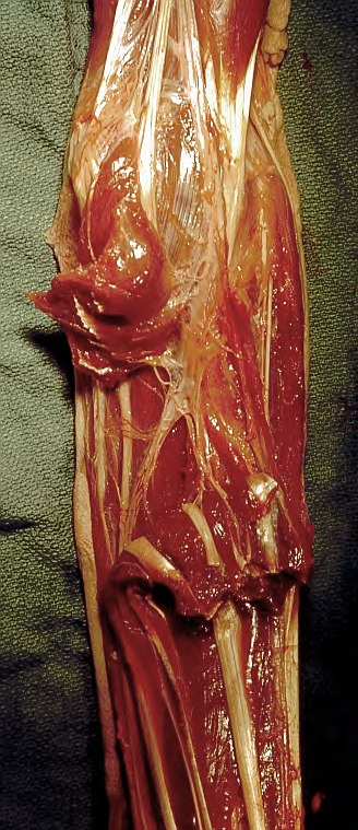 flexor digitorum superficialis muscle; flexor digitorum profundus muscle