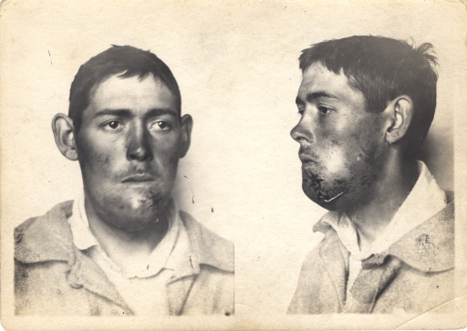 <p>Black and white photograph of injured soldier with facial wounds posing at 2 different angles.  The left side of ther patient's chin appears to have been sutured.</p>