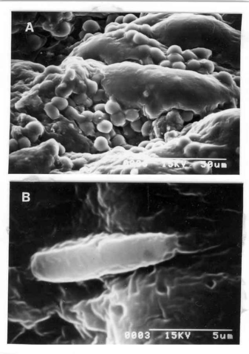 (A) Scanning electron microphotograph of gastric mucosa at presentation showing multiple round cells (possibly lymphocytes) but No H. pylori (× 1000). (B) Scanning electron microphotograph of gastric mucosa during re-infection showing bacillus with polar flagella suggestive of H. pylori (× 8000).
