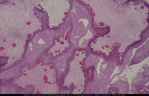 "Histologic section showing fibrous papillae covered by squamous epithelium.  No nests of ""wet"" keratin or foci of mineralization are present."