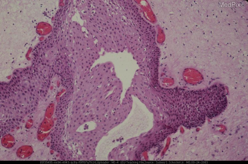 Higher magnification shows the well differentiated squamous epithelium without peripheral palisading of cells, stellate reticulum or areas of wet keratin.