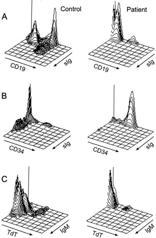 Flow cytometric analysis of bone marrow B cell precursors  from a normal age-matched control (left) and the patient with mutations  in λ5/14.1 (right). (A) Isometric contour plots of lymphoid-gated cells  stained with antibodies to CD19 and surface immunoglobulin (kappa +  lambda light chains). In the control, 46% of cells were CD19+, of which  29% were surface Ig (sIg)+. In the patient, 6% of cells were CD19+, with  only 0.7% of which were sIg+. (B) Three-color immunofluorescence was  used to stain cells for CD19, CD34, and sIg and CD19+ cells were analyzed. In the control sample, 11% of CD19+ cells were CD34+ and 60%  were CD34−, sIg−. In the patient, 87% of CD19+ cells were CD34+. (C)  Permeabilized cells were stained for TdT and surface or cytoplasmic IgM.  In the control, 5% of cells were TdT+, IgM−, 1% were TdT+, IgM+, and  40% were TdT−, IgM+. In the patient, 5% of cells were TdT+, IgM−,  0.2% were TdT+, IgM+, and 0.4% were TdT−, IgM+.