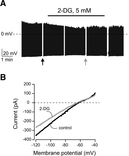 Effects of 2-deoxyglucose on cortical neurons. A: Effect of 2-deoxyglucose on the membrane potential. Breaks in the trace correspond to where the recording was interrupted to expose the cell to voltage-clamp ramps (see research design and methods). Arrows show where the voltage-clamp ramps shown in B were taken. B: Effect of 2-deoxyglucose on membrane current-voltage relationship of the cell shown in A. No activation of K+ current is observed, but 2-deoxyglucose inhibits a current with a reversal potential of about −50 mV.