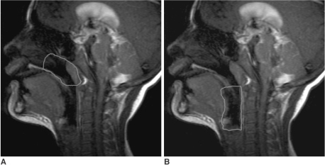 Sagittal cine MR images obtained with a 1.5T scanner in an 11-year-old boy with difficulty in tracheotomy tube decannulation, with the tracheotomy tube capped.A. Gradient-recalled-echo cine image. The line shows the region of interest of the nasopharynx.B. Gradient-recalled-echo cine image. The line shows the region of interest of the hypopharynx.