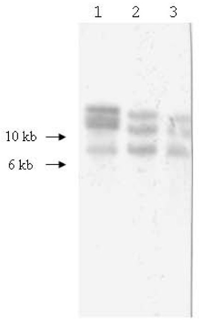 Southern blot hybridization analysis of genomic DNA digested with Pst I from T. asinigenitalis UCD-1T (lane 1), UK-1 (lane 2) and UK-2 (lane 3) isolates, by using the ISRA from the UCD-1T (UCD-1TA) as a probe.