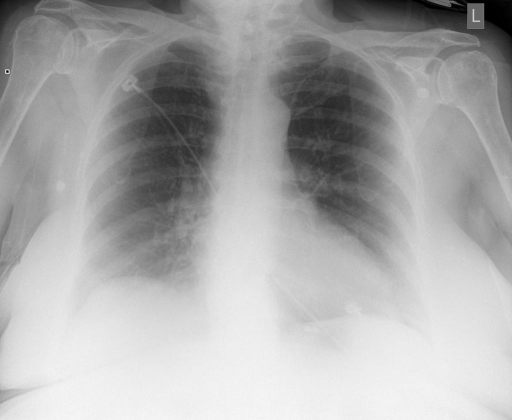 Frontal and Lateral view of the chest XXXX/XXXX at 434 hours.