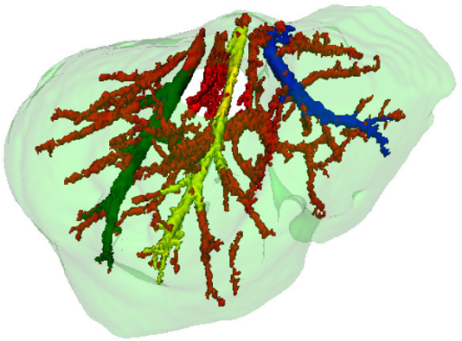 Hepatic vein main branches identification. The right main branch appears in green, the medium in yellow, and the left in blue. The other vessels appear in red.