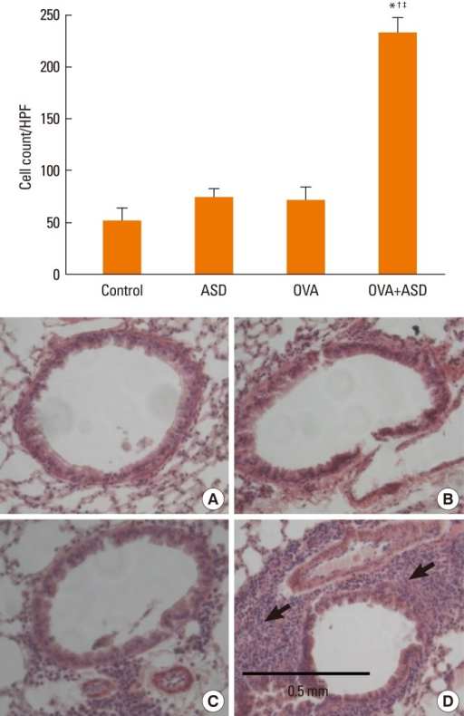 Hematoxylin & eosin staining. Inflammatory cells in the bronchi were increased in the OVA and OVA+ASD groups as compared with the control group. Inflammatory cells (black arrows) were more prominent in the OVA+ASD group than in the OVA group (original magnification ×200, A: Control, B: ASD, C: OVA, D: OVA+ASD). *P<0.05 vs. the control group, †P<0.05 vs. the ASD group, ‡P<0.05 vs. the OVA group.ASD, Asian sand dust; OVA, ovalbumin, HPF, high-power field.