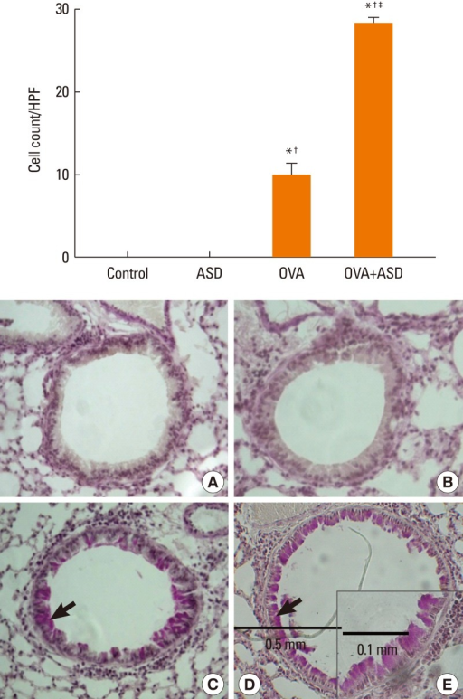 Periodic acid-Schiff staining. Mucin-containing epithelial cells were significantly increased in the OVA+ASD group as compared with the control and OVA groups (×200). Black arrows indicate PAS-positive cells (original magnification ×200 for A: Control, B: ASD, C: OVA, D: OVA+ASD and ×400 for E: OVA+ASD). *P<0.05 vs. the control group, †P<0.05 vs. the ASD group, ‡P<0.05 vs. the OVA group.ASD, Asian sand dust; OVA, ovalbumin, HPF, high-power field.