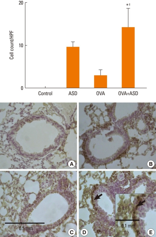 Immunohistochemical staining of lung tissue for IL-4. IL-4-positive cells (black arrows) were significantly increased in the OVA+ASD group as compared with the control and OVA groups (original magnification×200 for A: Control, B: ASD, C: OVA, D: OVA+ASD and original magnification×400 for E: OVA+ASD). *P<0.05 vs. the control group, P<0.05 vs. the ASD group, ‡P<0.05 vs. the OVA group.ASD, Asian sand dust; OVA, ovalbumin; HPF, high-power field.