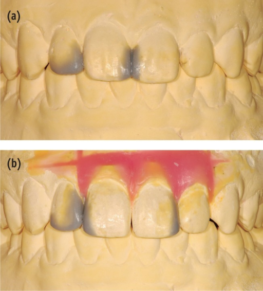 Two different diagnostic wax-ups. (a) Direct composite build-ups only; (b) Direct composite build-ups combined with orthodontic tooth movement.