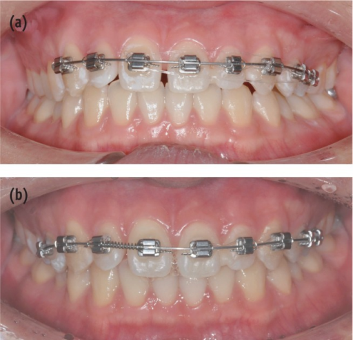 Orthodontic tooth movement. (a) A 0.16 × 0.22 inch TMA wire was used for arranging the teeth; (b) An open coil spring was inserted between right central incisor and right lateral incisor for mesial movement of right central incisor.