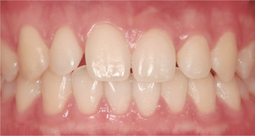 Midline correction and re-distribution of interdental spaces after minor tooth movement. Through the movement of both central incisors to the left, midline was corrected and interdental spaces were re-distributed.