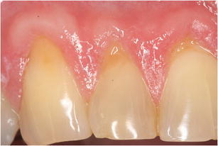 Patient with painful teeth after experiencing cold. Exposed dentin surfaces and signs of erosive lesions could explain the presence of dentin hypersensitivity