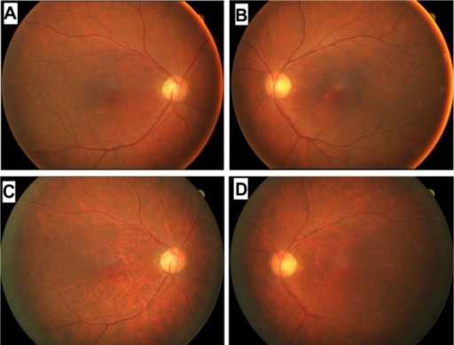 Fundus photographs of a patient diagnosed with carcinoma-associated retinopathy who developed choroidal atrophy during a 2-year follow-up period. Fundus photographs of the right (A) and left (B) eyes taken at the initial examination in June 2010. Fundus photographs of the right (C) and left (D) eyes taken in October 2012.