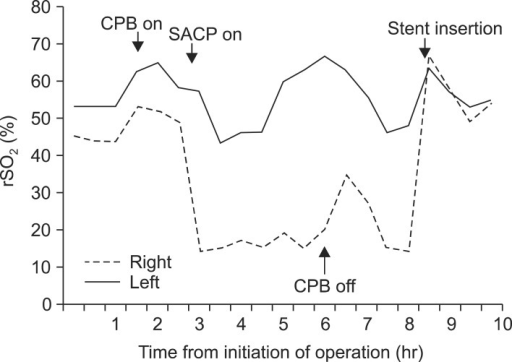 the serial changes of right and left regional cerebral open i