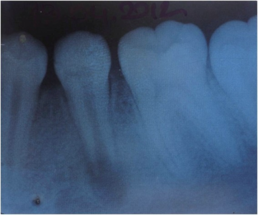 Periapical radiograph of the left permanent mandibular second premolar before treatment.