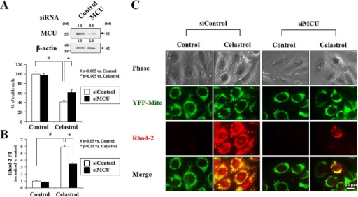 MCU knockdown inhibits celastrol-induced paraptosis(A) MDA-MB 435S cells were transfected with MCU siRNA and further treated with or without 2 μM celastrol for 24 h. Knockdown of MCU was confirmed by Western blotting using anti-MCU antibody. β-actin was used as a loading control in Western blots (upper panel). Cellular viability was assessed using calcein-AM and EthD-1 (lower panel). (B) MDA-MB 435S cells were transfected with MCU siRNA and further treated with or without 2 μM celastrol for 2 h. Cells were stained with 2.5 μM Rhod-2 and processed for FACS analysis. The fold changes of Rhod-2 fluorescence intensities (FI) are shown in the graph. (C) YFP-Mito cells were transfected with MCU siRNA and further treated with or without 2 μM celastrol for 2 h. Treated cells were stained with Rhod-2 and processed for the phase contrast and fluorescence microscopy.