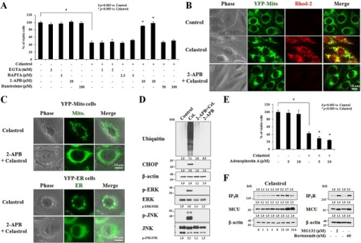 IP3R-mediated Ca2+ release from the ER is critical for celastrol-induced paraptosis(A) MDA-MB 435S cells were pretreated with the indicated concentrations of extracellular Ca2+ chelators (EGTA and BAPTA), 2-APB, and dantrolene for 30 min and further treated with or without 2 μM celastrol for 24 h. Cellular viability was measured using calcein-AM and EthD-1. (B) YFP-Mito cells were pretreated with 20 μM 2-APB and further treated with 2 μM celastrol for 2 h. Cells were stained with Rhod-2 and processed for the phase contrast and fluorescence microscopy. (C) YFP-Mito and YFP-ER cells were pretreated with 20 μM 2-APB, further treated with 2 μM celastrol for 3 h, and observed under the phase contrast and fluorescence microscope. (D) MDA-MB 435S cells were pretreated with 20 μM 2-APB and further treated with 2 μM celastrol for 24 h followed by Western blotting. β-actin was used as a loading control in Western blots. The relative phosphorylation levels of the respective MAP kinase were determined by the fold changes of densitometric values in treated groups to the values in the control group. Densitometric values for the phospho-proteins of interest were normalized for protein loading with their total proteins. The relative expression levels of CHOP and ubiquitin were determined using densitometric analysis compared to untreated control. (E) MDA-MB 435S cells were pretreated with the indicated concentrations of adenophostin A and further treated with or without 2 μM celastrol for 24 h. Cellular viability was measured using calcein-AM and EthD-1. (F) MDA-MB 435S cells were treated with 2 μM celastrol for the indicated time points (left), 2 μM MG132 or 40 nM bortezomib for 24 h (right) and Western blotting of IP3R, MCU, and β-actin was performed. Compared to control (untreated cells), the fold change of protein levels was determined by a densitometric analysis.