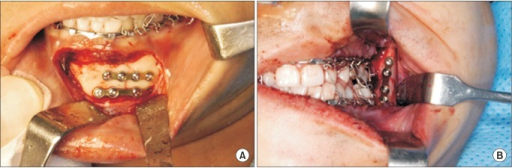 Placement of titanium plates and screws in symphysis (A) and angle area (B).