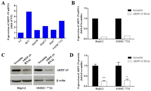 Down-regulating the expression of ARPP-19 in hepatocarcinoma cells. (A) The expression level of ARPP-19 in four strains of hepatocarcinoma cells and in the pool of ten pairs of HCC and the non-tumorous liver tissues (NT) was determined by qRT-PCR, with β-actin as the internal control; (B) HepG2 and SMMC-7721 cells were transfected with lentivirus with GV118-GFP vector carrying siRNA against ARPP-19 (ARPP-19-RNAi) or empty vector (scramble). The ARPP-19 mRNA level was measured by qRT-PCR, with β-actin as the internal control; (C) The protein level of ARPP-19 in HepG2 and SMMC-7721 cells transfected with ARPP-19-RNAi or scramble was measured by immunoblotting, with β-actin as the loading control; (D) The images of western blots of (C) were quantified. The data are shown as the mean ± SEM, and significant values are indicated with asterisks (*p < 0.05; **p < 0.01, versus scramble).