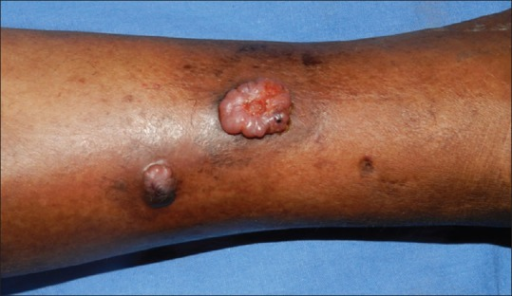Erythematous polypoidal fleshy nodules over the leg (taken after excision biopsy of one lesion)