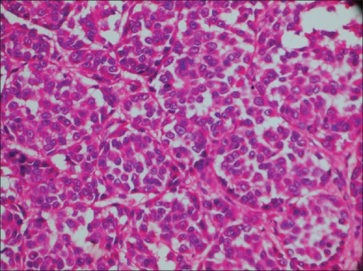 Cells with clear to eosinophilic cytoplasm and vesicular nuclei with prominent nucleoli arranged in nested pattern (H and E stain, ×40)