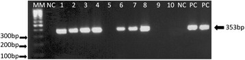 Agarose gel electrophosis of the amplication products from LnPCR for the SSUrRNA gene. Samples: MM:100 bpmolecular size marker; NC: Negative Control; 01 to 10: amplifield DNA from mammal samples; PC: Positive control-L.braziliensis (MOHM/BR/75/M2903)DNA.