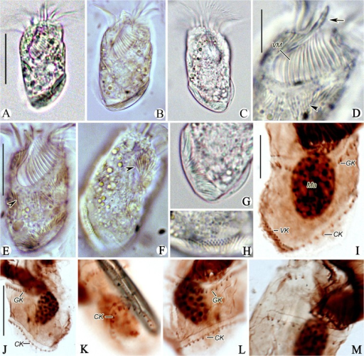 Photomicrographs of Antestrombidium agathae gen. nov., sp. nov. from life (A-H) and after staining with protargol (I-M).A, B. Ventral views of two individuals; C. Dorsal view; D. Ventral view of anterior part of cell, arrow marks the apical protrusion and arrowhead indicates the extrusomes; E, F. Ventral (E) and Dorsal (F) views showing the distribution of extrusomes (arrowheads); G, H. Posterior portion of cell showing the distribution of extrusomes; I, J. Ventral and dorsal views of posterior portion of cell, showing the somatic kineties; K, L. Left and ventral views showing the GK and CK; M. Right lateral view showing the GK. Legend: CK-circular kinety; GK-girdle kinety; Ma-macronucleus; VK-ventral kinety; VM-ventral membranelles. Scale bars: A-C. 30 μm; D, G-I, L, M. 10 μm; E, F, J, K. 20 μm.