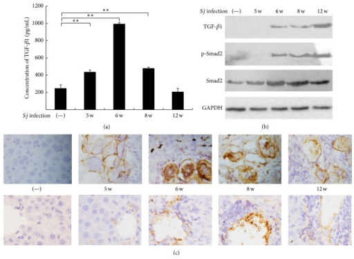 TGF-β1 level increased gradually in mice liver during the courses of Sj infection. (a) TGF-β1 level in serum was determined by ELISA in BALB/c mice with 20 ± 3 infective Sj cercariae for 5, 6, 8, and 12 weeks, and uninfected mice were used as control. Data are shown as means ± SD of 10 mice/group. Experiment was performed four times (∗P < 0.05; and ∗∗P < 0.01 compared with uninfected group). (b) Equal amounts of proteins of mouse liver tissue lysates at indicated time points were used in the Western blot assay to detect protein expression levels of TGF-β1, p-Smad2, and Smad2. GAPDH was used as loading control. (c) Mouse livers at indicated time points were fixed in paraformaldehyde, embedded in paraffin, and then sliced and immunohistochemically stained for TGF-β1. Representative staining for TGF-β1 is shown at ×400 magnification. Top: TGF-β1 expression in egg, Sj egg granuloma, and the surrounding tissue. Bottom: TGF-β1 expression in hepatic cell and liver tissue around the liver sinusoid.