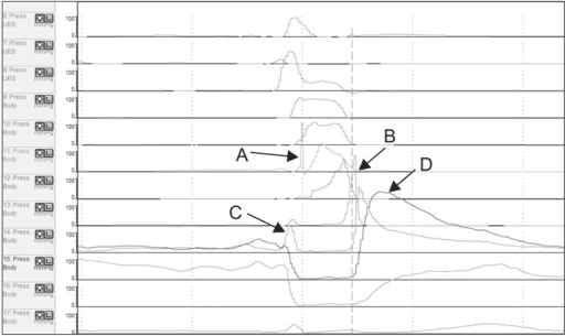 The epiglottic tilting peak at 1 level higher or lower to epiglottis level as a tongue base pressure (A), low pharyngeal peristaltic shallow and peristaltic peak between TB and UES (B), pre-UES peak (C), and post-UES peak (D). TB, tongue base; UES, upper esophageal sphincter.