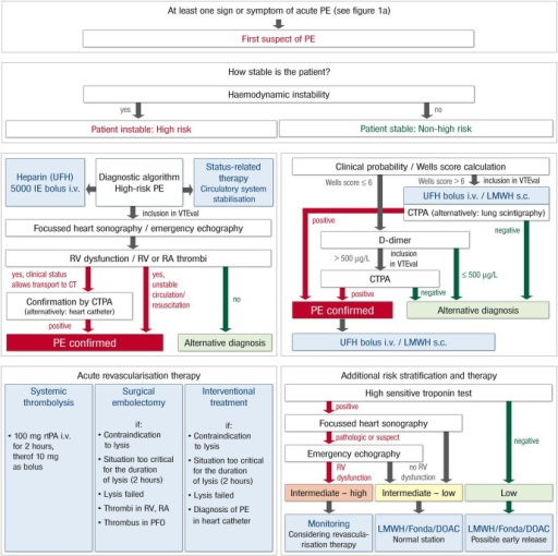 Standard operating procedure (SOP) and risk-adjusted therapeutic strategies in acute pulmonary embolism. CTPA, computed tomographic pulmonary angiography; DOAC, direct oral anticoagulant; Fonda, fondaparinux; i.v., intravenous; LMWH, low-molecular-weight heparin; PE, pulmonary embolism; PFO, patent foramen ovale; RA, right atrial; rtPA, recombinant tissue plasminogen activator; RV, right ventricular; s.c., subcutanous; UFH, unfractionated heparin.