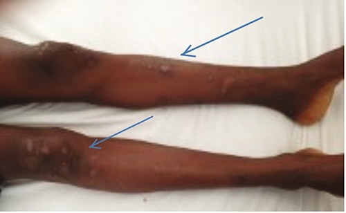 On both legs there were multiple excoriated papular lesions.