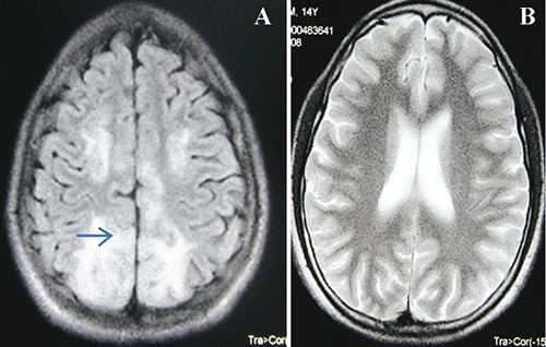 Magnetic resonance imaging of the brain: abnormal hyperintense signals seen in axial FLAIR in cortical and subcortical areas of occipital lobe and anterior parietal/posterior frontal lobes consistent with posterior reversible encephalopathy syndrome (A). Normal axial T2 image is shown 3 weeks later (B).