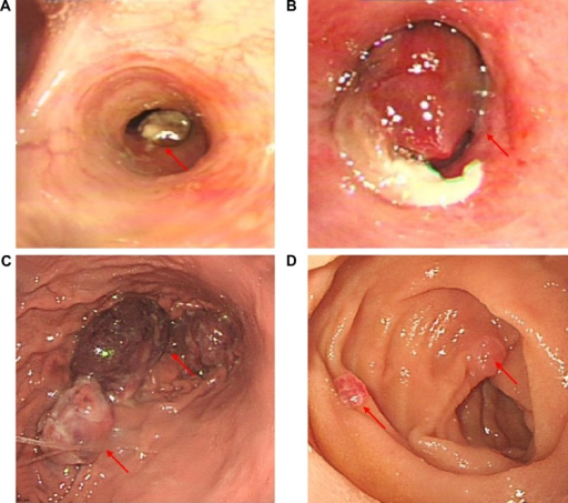 Findings from endoscopy.Notes: (A) Bronchoscopy demonstrated a tumor mass in the left lingual bronchus (arrow). (B) The tumor projected into the left main bronchus on the second admission (arrow). (C) Gastroscopy demonstrated multiple submucosal masses in the fundus of the stomach (arrows). (D) Multiple lesions were also seen in the duodenum (arrows).