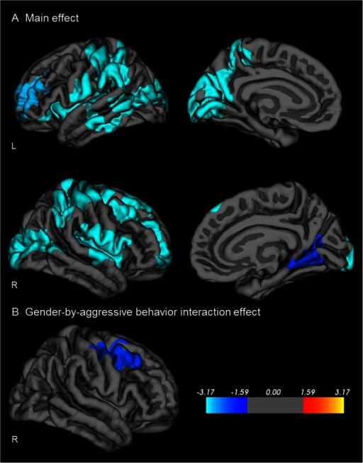 Relation between cortical gyrification and aggressive behavior. Sex, age, and IQ were used as covariates (Monte Carlo corrected cluster-wise p < .05). a) Cortical gyrification was negatively associated with aggression in a cluster including the left precentral cortex, extending to the postcentral, paracentral, parietal, temporal, occipital, precuneus, and inferior frontal cortex as well as in a cluster including the left rostral middle frontal cortex (i.e.reduced gyrification was associated with more aggressive behavior). In the right hemisphere, aggressive behavior was associated with reduced gyrification in a cluster including the precentral cortex, extending anteriorly to the frontal cortex, and posteriorly to postcentral, and parietal cortex. The second right hemisphere cluster included the postcentral and insular cortex. The third right hemisphere cluster included the lateral occipital and inferior parietal cortex, while the forth cluster included the lingual cortex, extending to the precuneus and cuneus. b) A moderating effect of gender was found for a cluster including the right middle frontal, and superior frontal cortex and for a cluster including the right right precentral, postcentral, frontal, and supramarignal cortex. In this region, greater aggressive behavior was associated with reduced gyrification in boys only. Colors represent –log10 p-value