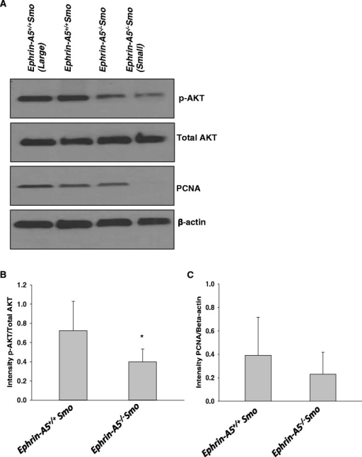 Western blot analysis shows altered expression of p-Akt and PCNA that related to tumor size and genotype in ephrin-A5−/−Smo mouse model. a Western blot analysis in representative tumor sections suggests a decrease in p-Akt and PCNA expression in smaller tumors (<10 mm3) with loss of the ephrin-A5 gene. Total Akt levels seem to be unchanged. b Densitometric analysis of p-Akt expression (*p ≤ 0.05) and c PCNA expression (p = not significant) in ephrin-A5+/+Smo versus ephrin-A5−/−Smo tumors. Data represent mean ± standard deviation from different tumor tissues