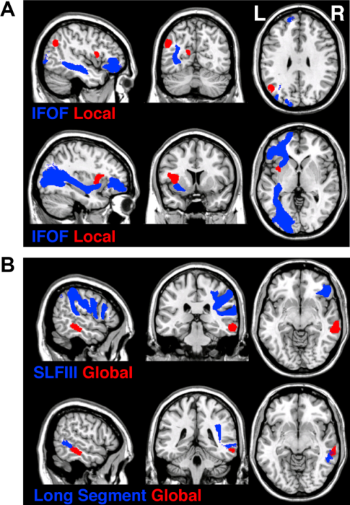The asymmetrical brain networks for attending to (A) local and (B) global features. The trajectories of white matter pathways (blue) indicated by track-wise lesion analyses are presented in relation to cortical loci indentified by VBM (red). The trajectories of white matter pathways (blue; IFOF = inferior-fronto-occipital fasciculus, SLFIII = third branch of superior longitudinal fasciculus and long segment of perisylvian network) are presented as the thresholded (50%) maps from the DTI tractography atlas of human white matter tracts (Thiebaut de Schotten et al., 2011a, Thiebaut de Schotten et al., 2011b) and the cortical loci (red) are presented as binary statistical maps thresholded at the significance level of p < .001 cluster-level corrected for multiple comparison (see Table 2 for full details).