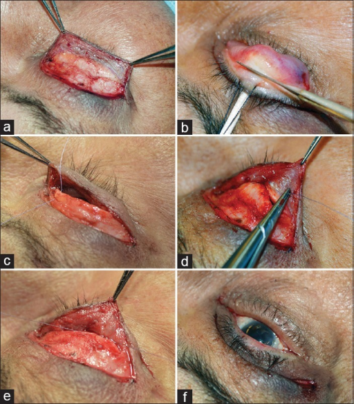 Main surgical steps of the lid crease approach to upper lid margin rotation: (a) Using a standard blepharoplasty incision a pretarsal skin-muscle flap is raised exposing the whole tarsal flap until the lash roots are visualized, (b) tarsotomy is performed with a conjunctival incision 3–4 mm from the lid margin, (c) a 6-0 Vycril suture is inserted first through the distal segment of the tarsus, (d) the suture is passed on the orbicularis muscle close to the lash roots, (e) as the suture is tied the distal tarsal fragments is slightly advanced over the marginal tarsus and traction is exerted on the orbicularis, (f) final aspect of the lid rotation