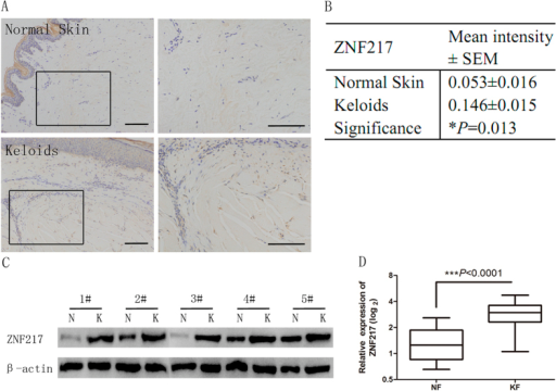ZNF217 expression in keloid tissue and keloid fibroblasts.(A) Immunohistochemical staining for ZNF217 in keloid (K) tissues and paired normal skin (NS) tissues. Upper, NS; lower, K; left, ×40; right, ×200; (B) Comparison between K and NS tissues regarding ZNF217 expression in terms of mean intensity; (C) Western blot analysis of ZNF217 protein expression in normal fibroblasts (NF) and keloid fibroblasts (KF), with β-actin being used as an internal control; (D) qRT-PCR determination of relative expression levels of ZNF217 in NF and KF.