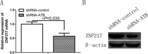 lncRNA-ATB knockdown downregulates ZNF217 expression in keloid fibroblasts.(A,B) qRT-PCR and Western blot determination of relative ZNF217 expression levels in keloid fibroblasts (KF) treated with a control shRNA (shRNA-control) or an lncRNA-ATB–specific shRNA (shRNA-ATB), respectively.