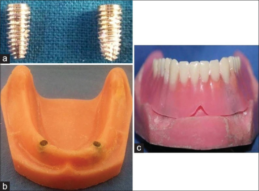 (a) Two implant replicas (CMI) - 3.75 mm diameter, 10 mm length. (b) Edentulous mandibular acrylic resin model with the two implant replicas placed in the intraforaminal region (22 mm apart) and retained with resin cement. (c) Mandibular overdenture fabricated in a conventional manner using heat polymerized polymethyl methacrylate resin