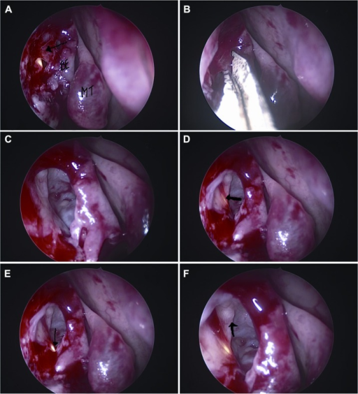 Endoscopic views of the right nasal cavity.Notes: Partly opened anterior mucosa of the bulla ethmoidalis (arrow) (A). Note the location of the bulla ethmoidalis and middle turbinate. Anterior mucosa of the ethmoid being incised following removal of anterior ethmoid air cells (B). Completely exposed ethmoid sinus (C). Light-probe guidance showing the lacrimal sac (arrow) (D) and nasolacrimal duct (arrow) (E). Close-up view showing the entire lacrimal sac within the ethmoid sinus (F). Note the medial wall of the orbit (arrow).Abbreviations: BE, bulla ethmoidalis; MT, middle turbinate.